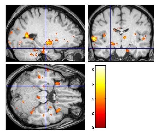 An fMRI of my brain